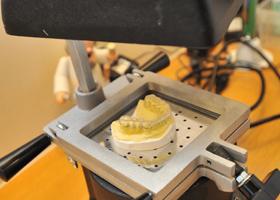 歯ぎしりの治療